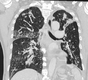 Chest CT margolio