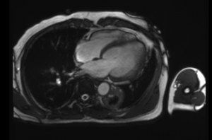 MRI picture Margono