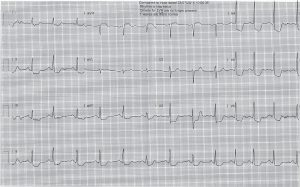 ecg-post-cardioversion-evening-3