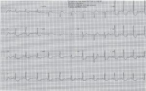 ecg-post-cardioversion-evening-3