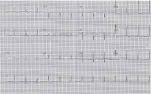ecg-post-cardioversion-evening-5
