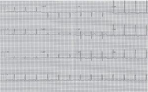 ecg-post-cardioversion-evening-5