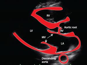 normal-aorta