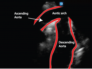 aortic-arch