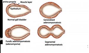 Pitfall Stones In The Gall Bladder Adenomyomatosis