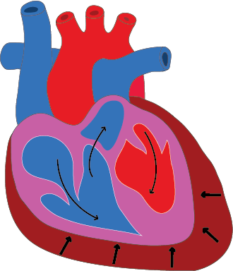 Assessment of Pericardial effusion